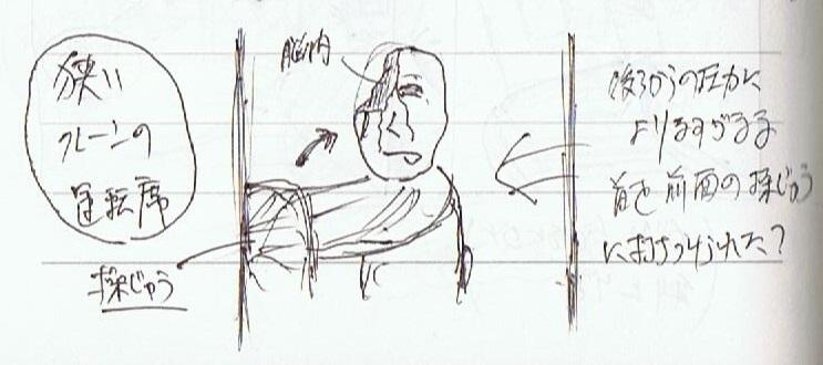 <夢占い>事故で頭部を破壊された男をみる